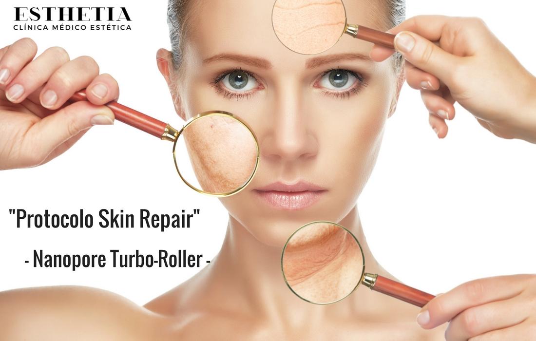 skin repair - tratamiento con turbo roller nanopore de sesderma ESTHETIA OLIVA