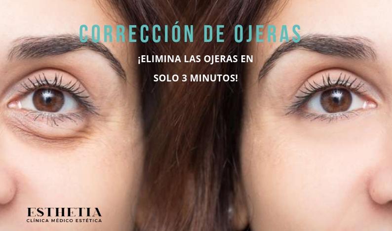 eliminación de ojeras - clínica Esthetia