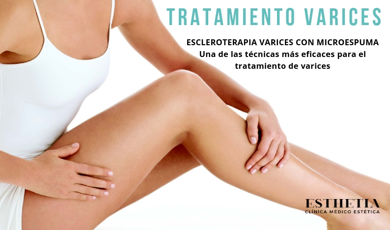 videos de tratamientos de varices
